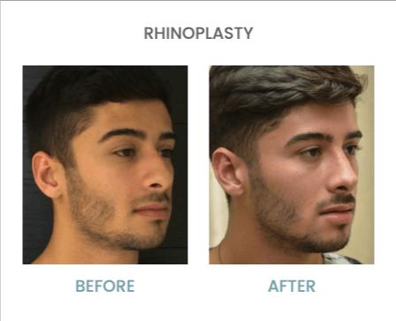Types of nose Rhinoplasty