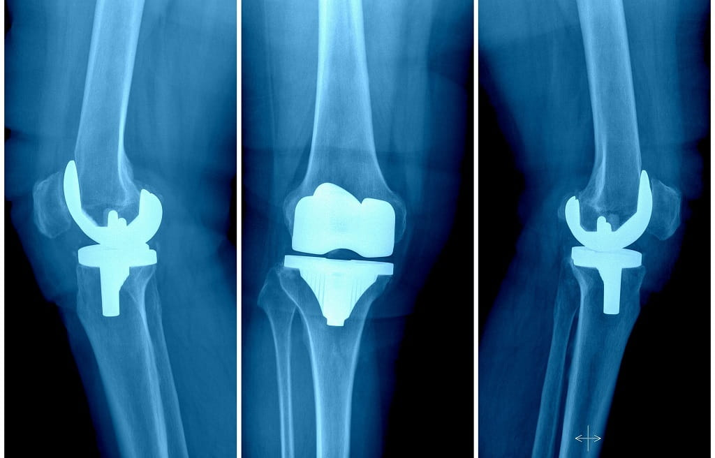 What waits after a knee replacement?