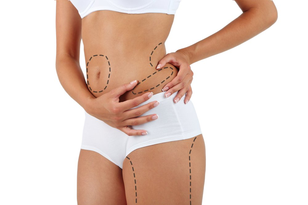 3 Important Reasons to Undergo Mommy Makeover Surgery in Mexico after Childbirth