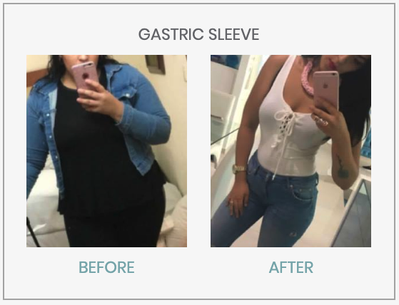 What Should the Diet Be Like Before and After Gastric Bypass?