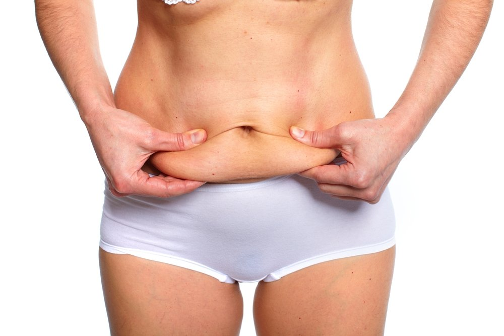 What You Need to Know Before Undergoing a Tummy Tuck