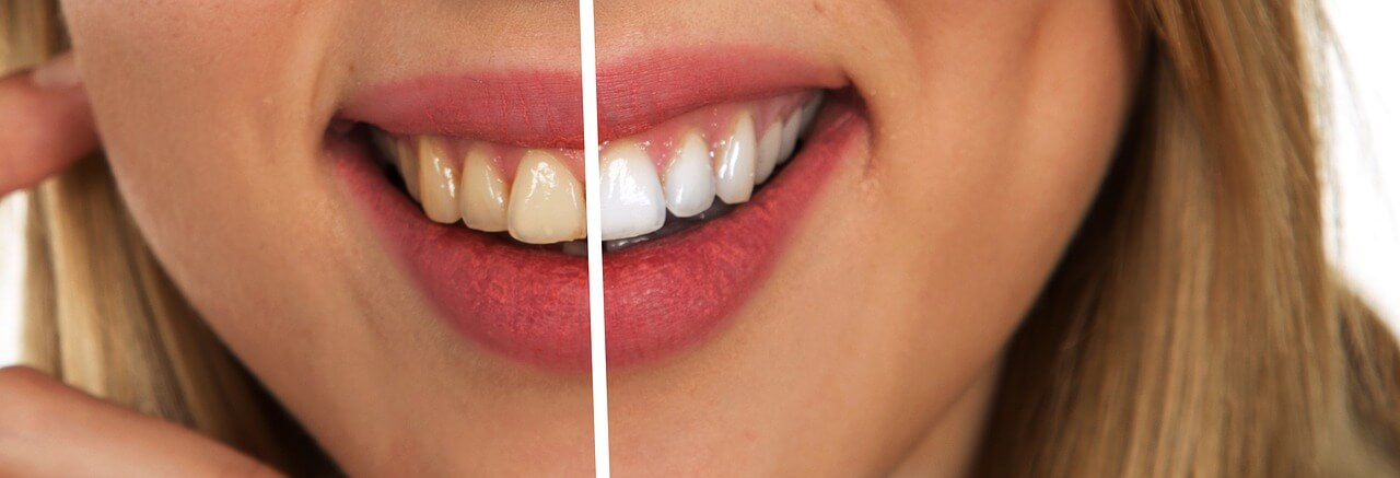 When Is it Necessary to Use Dental Implants?