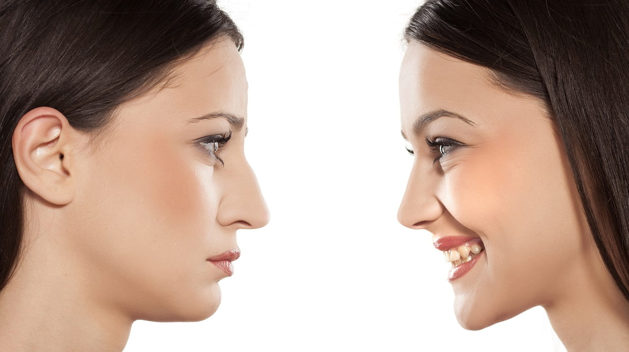The Top 5 Questions About Rhinoplasty Answered